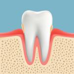 高齢者の歯周病 歯肉炎