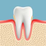 高齢者の歯周病 軽度歯周病
