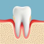 高齢者の歯周病 中度歯周病