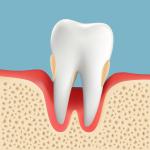 高齢者の歯周病 重度歯周病
