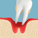 高齢者の歯周病 重度歯周病が進行し歯の脱落